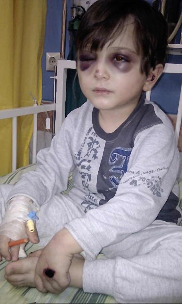 نگاهی به پدیده کودکآزاری در ایران