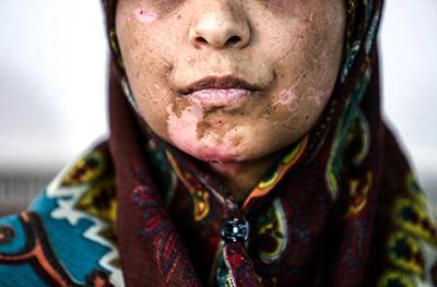 عوامل ساختاری ایجاد خشونت علیه زنان در ایران