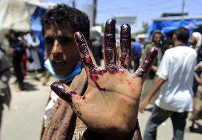 جنایت جنگی در یمن