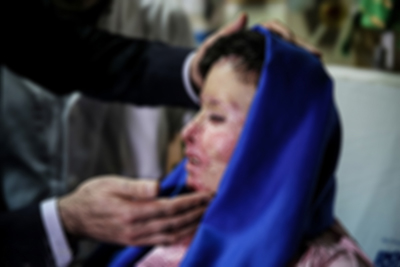 رئیس بیمارستان سوانح سوختگی شهید مطهری تهران آخرین وضعیت دوزن جوان را که در جریان اسیدپاشی سوختهاند، تشریح کرد
